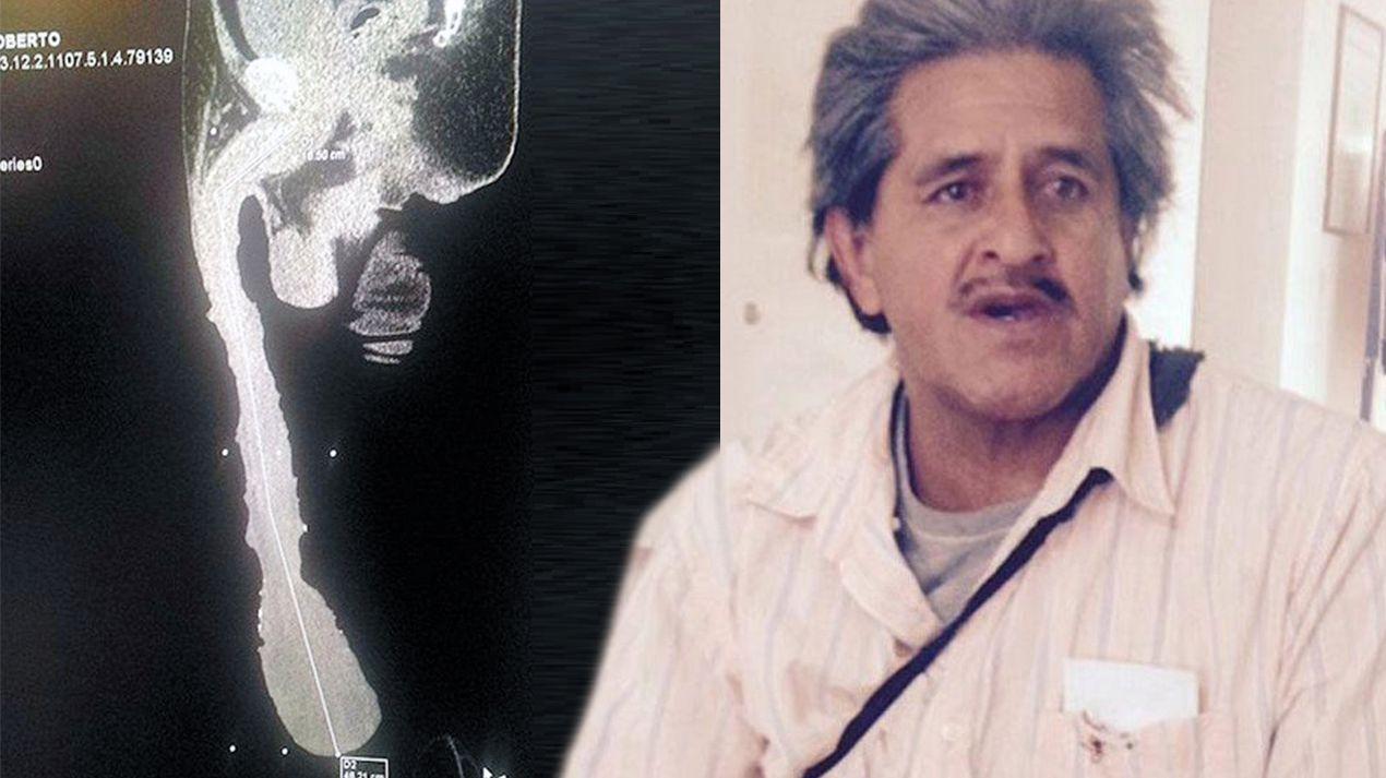 Инвалидом признан вМексике владелец 45-сантиметрового пениса